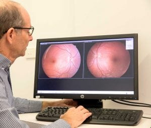 Ortho K to improve vision at Kofsky Optometry